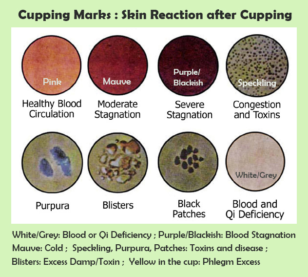 cupping-marks-Skin-reaction-after-cupping